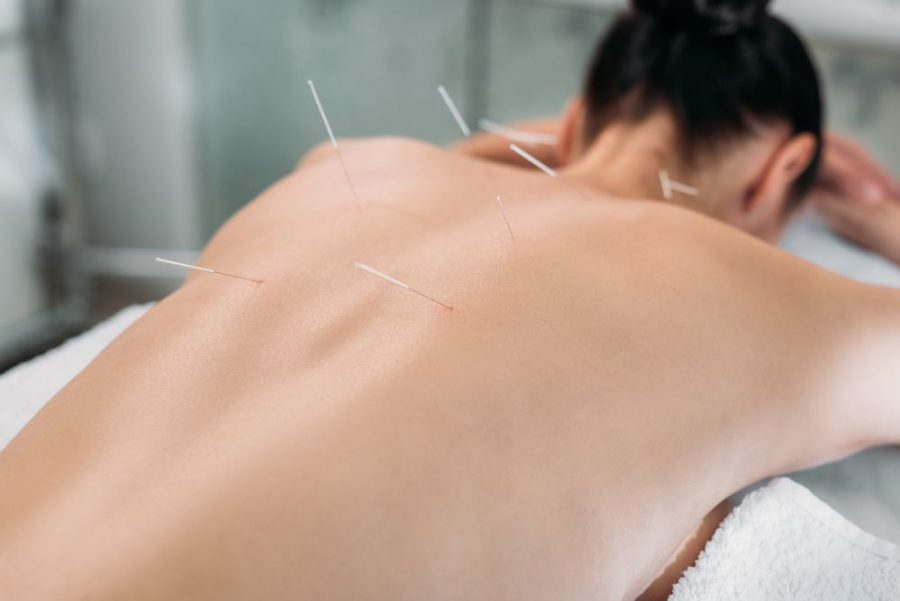 How Many Sessions of Acupuncture are Needed
